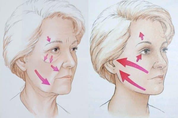 Comment choisir un centre de lifting cervico facial ?